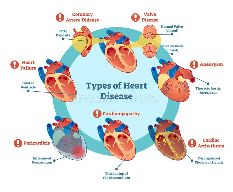 Soorten hartkwaalinzameling, vectorillustratiediagram Onderwijs medische informatie stock illustratie