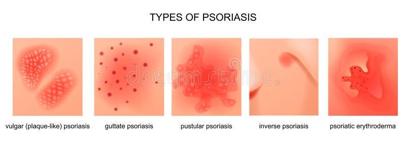 Soorten psoriasis royalty-vrije illustratie