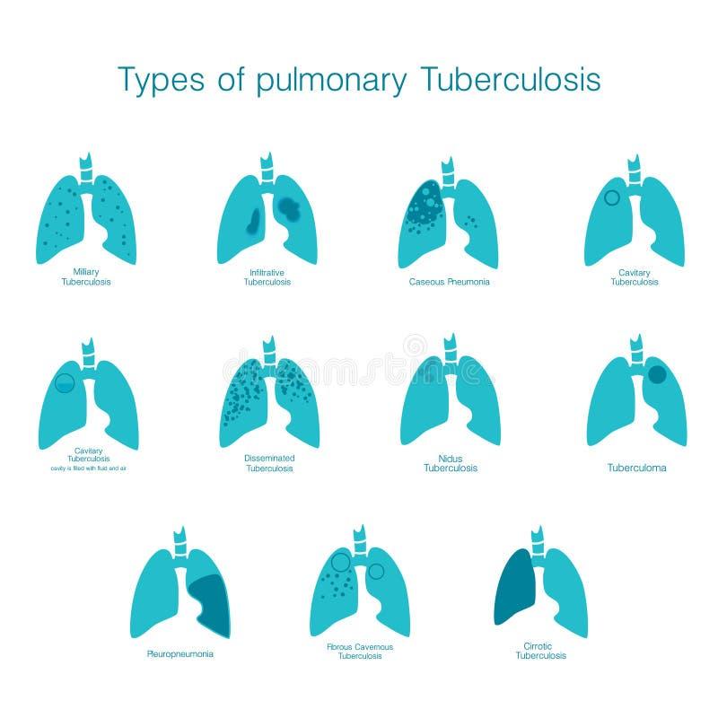 Soorten tuberculose Vectorsilhouet medische illustratie van menselijk lichaamsorgaan royalty-vrije illustratie