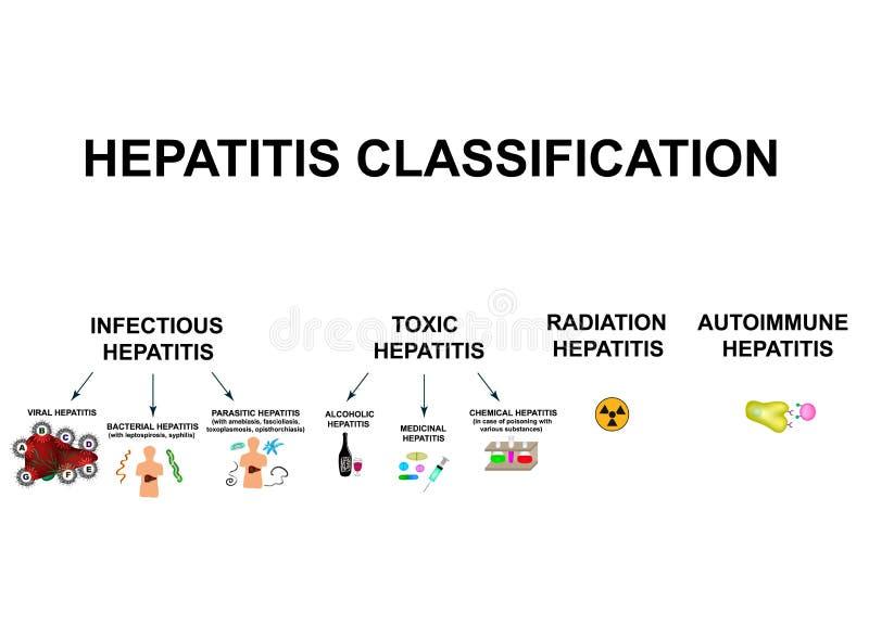 Soorten virale hepatitis CLASSIFICATIE VAN HEPATITIS A, B, C, D, E, F, G Giftig, besmettelijk, auto-immuun, straling royalty-vrije illustratie