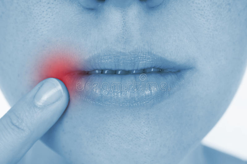 Sore herpes, shown red royalty free stock image