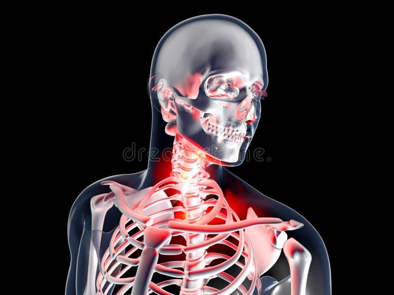 Sore Throat - Anatomy. Sore Throat . 3D rendered illustration royalty free illustration