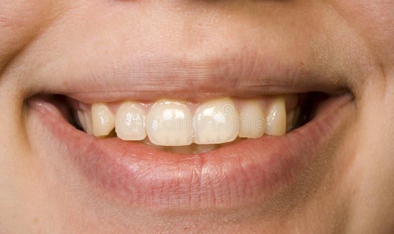 Download Sorriso fotografia stock. Immagine di sorriso, mancanza - 214980