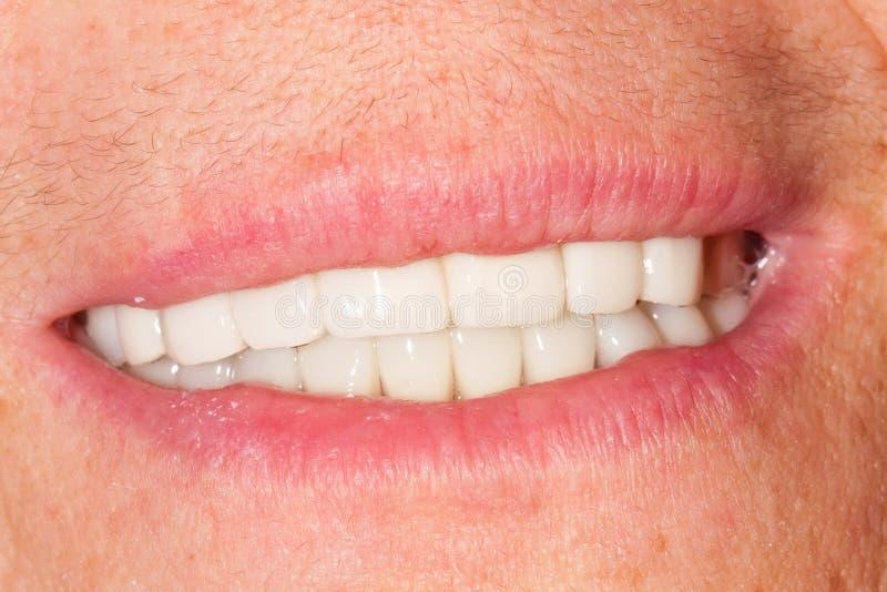 Dentadura foto de stock
