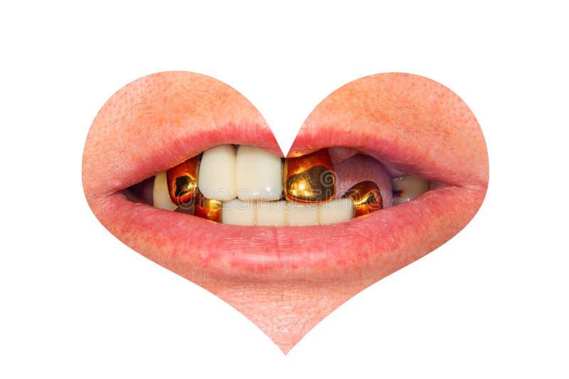 Sorriso mau com close-up dental dos dentes e das coroas do metal na forma de um coração Isolado do conceito no Valentim branco do fotos de stock royalty free