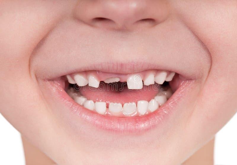Sorriso senza denti fotografie stock
