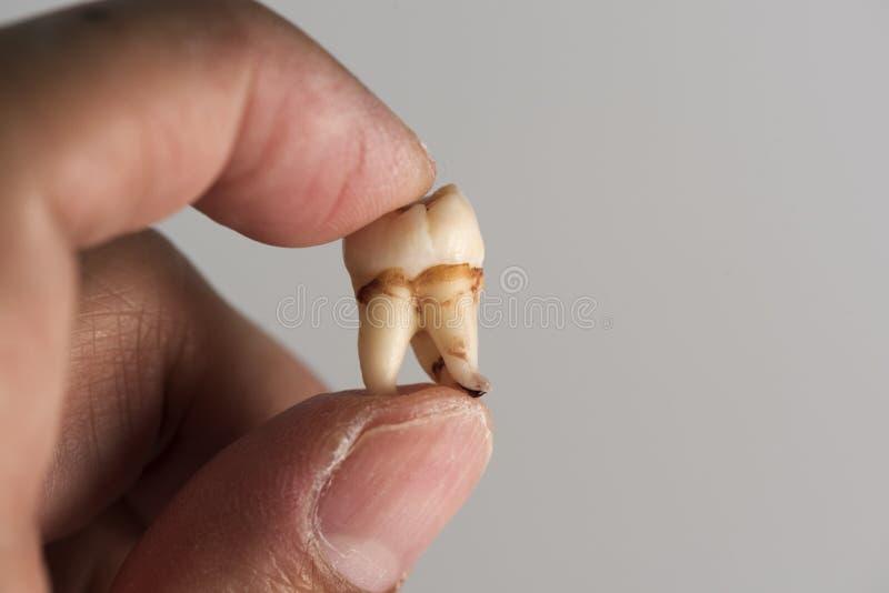Sostener un diente de sabiduría foto de archivo libre de regalías