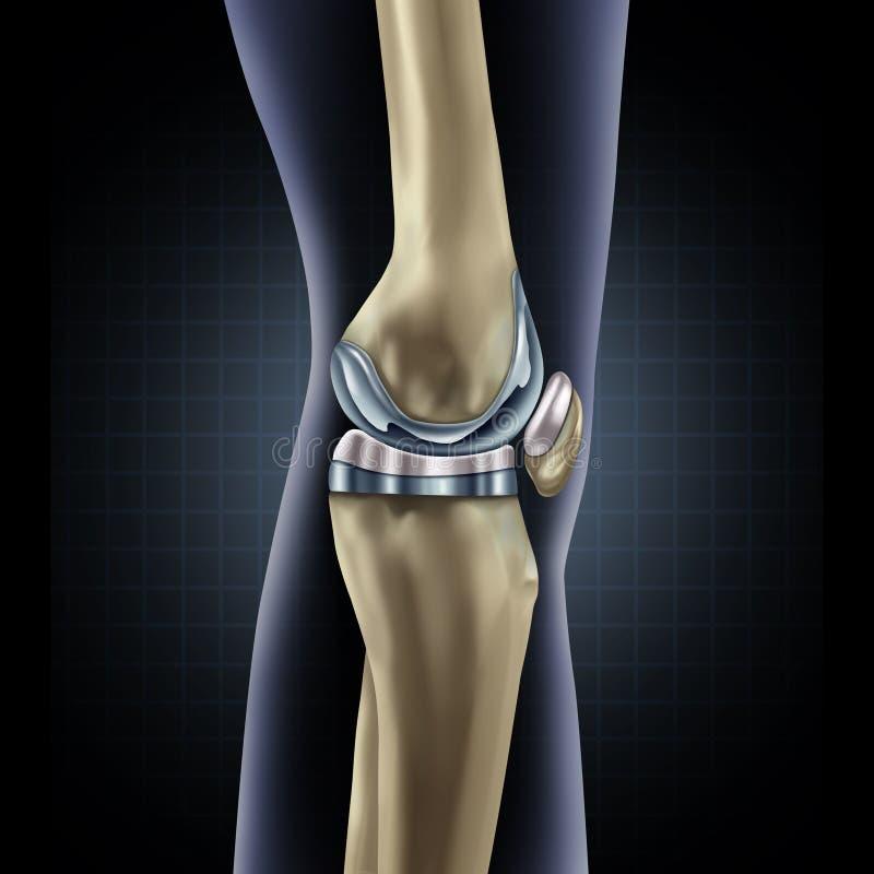 Sostituzione del ginocchio royalty illustrazione gratis