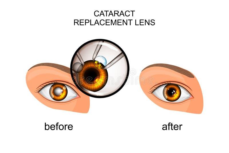 Sostituzione della lente cristallina in cataratta illustrazione di stock