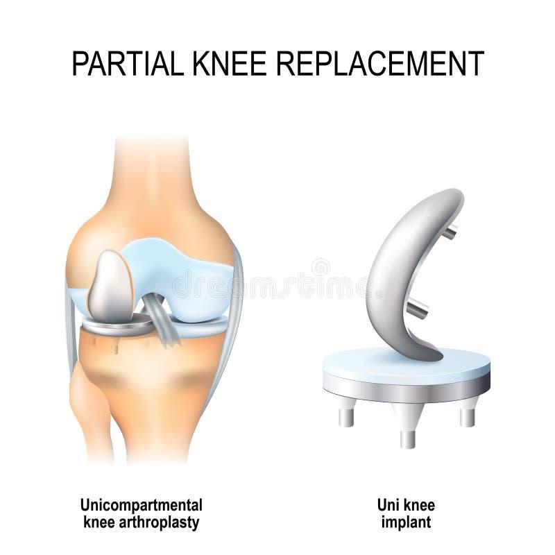 Sostituzione parziale del ginocchio illustrazione di stock