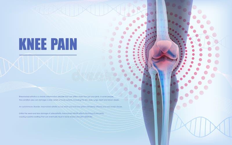 Soulagement de la douleur de genou, os du genou illustration libre de droits