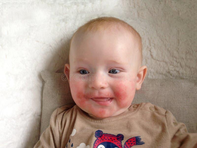 Spädbarn med tecken av allergin på framsidan royaltyfri fotografi