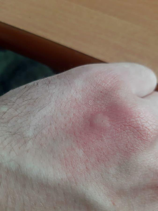 spåra, når du har bitit en mygga på huden royaltyfri foto