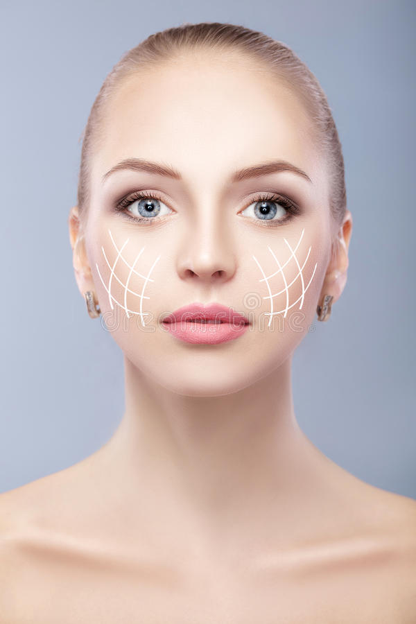 Spa portrait of attractive woman with arrows on face Face lifting concept. Plastic surgery treatment, medicine. Spa portrait of attractive woman with arrows on royalty free stock photography
