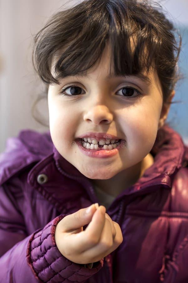 Spadać dziecko dojny ząb zdjęcie royalty free