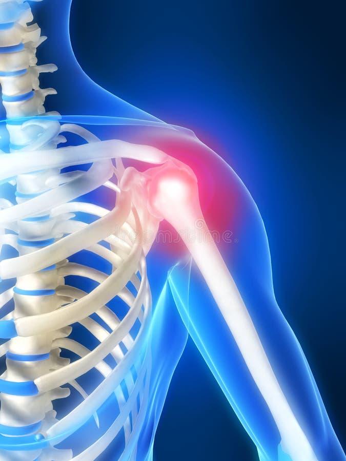 Spalla scheletrica con dolore illustrazione di stock