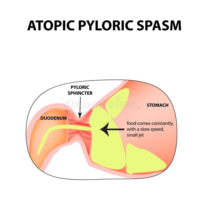 Spasms Of The Pylorus Pylorospasm Atonic Pyloric Sphincter Of The