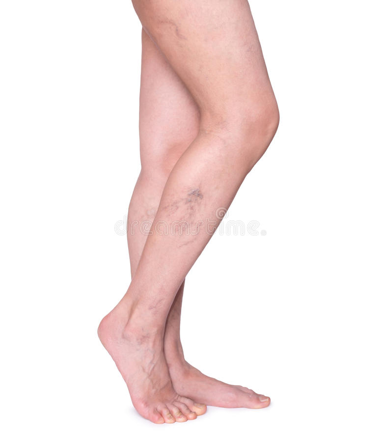Spataders in de benen De benen van de vrouw die op wit worden geïsoleerd stock foto