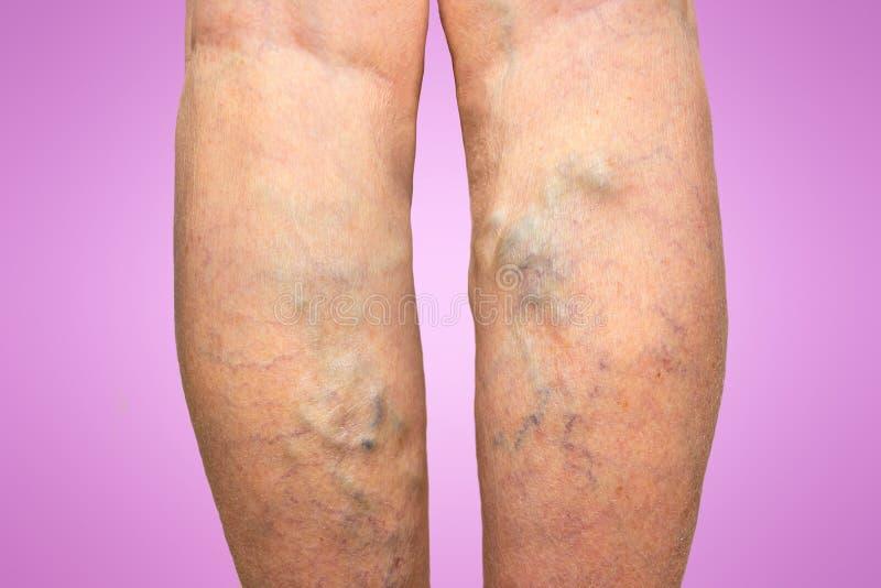 Spataders op vrouwelijke benen stock afbeelding