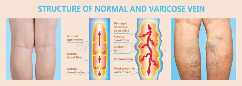 Spataders op vrouwelijke hogere benen De structuur van normaal en spataders vector illustratie