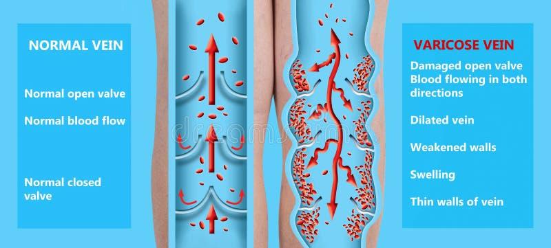 Spataders op vrouwelijke hogere benen De structuur van normaal en spataders royalty-vrije illustratie