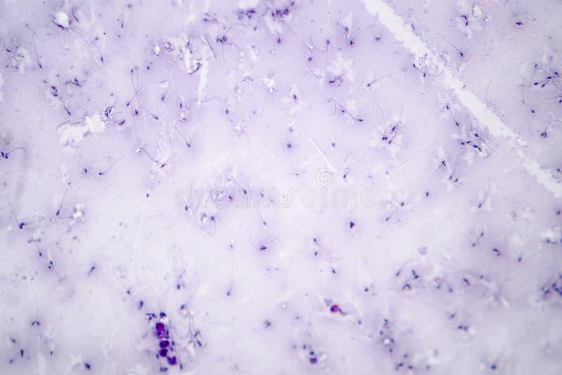Spermamorfologi Sädesvätskafoto under mikroskopet royaltyfri fotografi