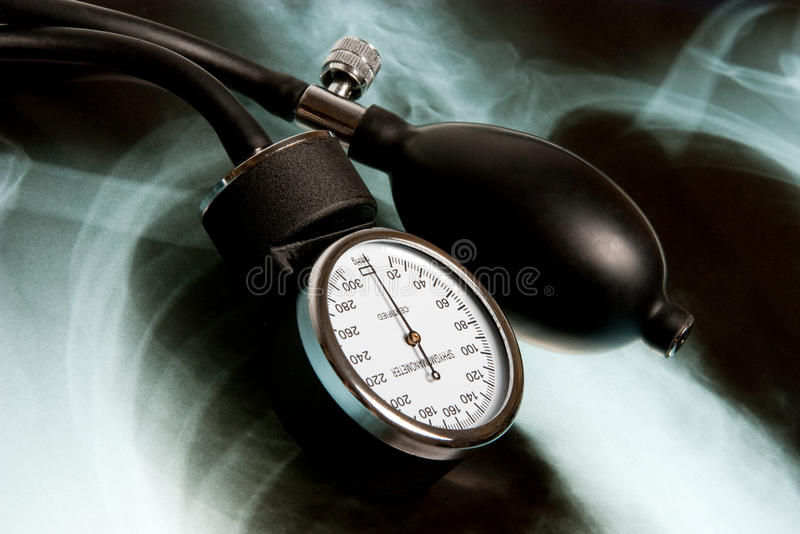Sphygmomanometer on Xray photo. (close up photo stock image