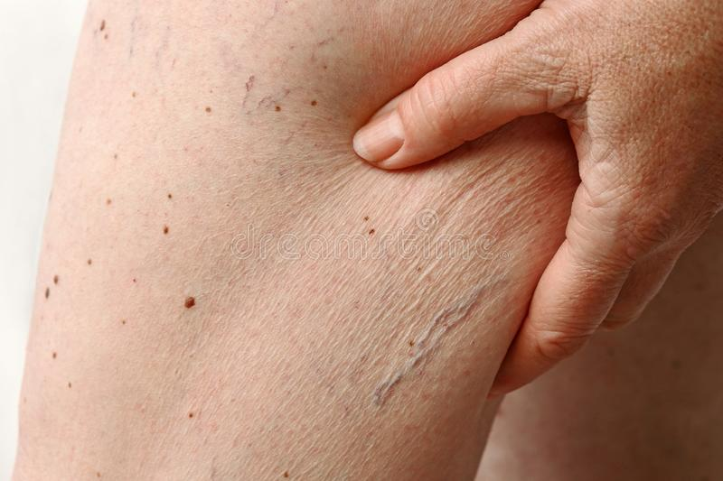 Spider veins and cellulite on a woman`s leg. Pathological change in the leg royalty free stock image