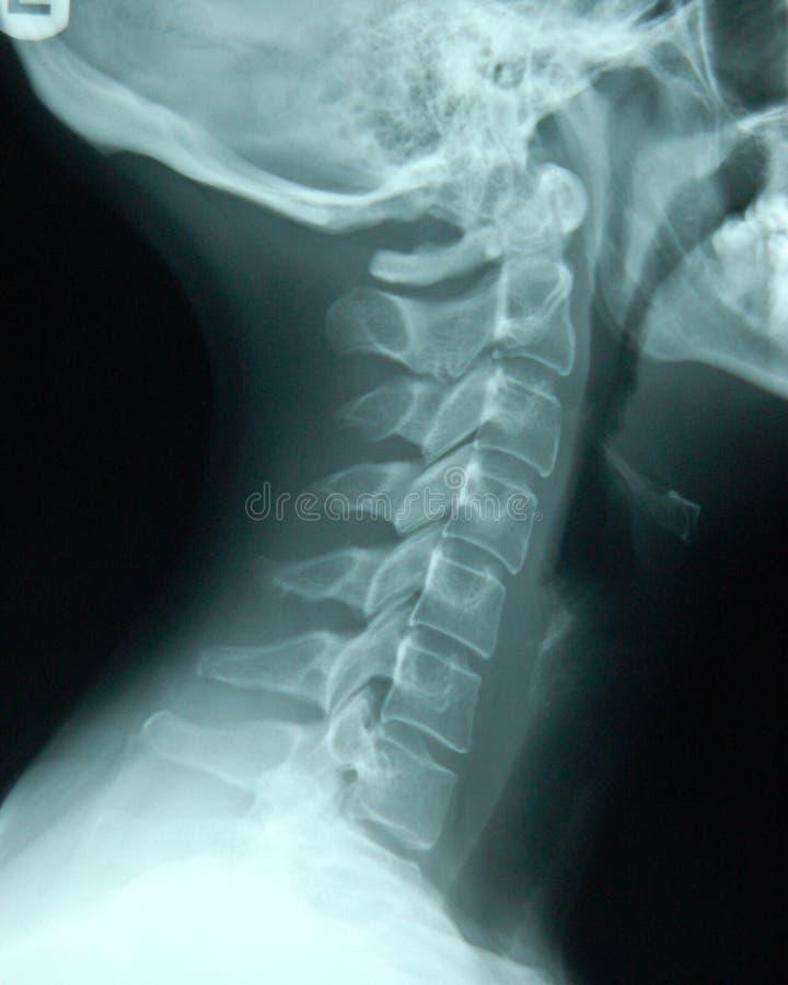 Spina dorsale cervicale immagine stock libera da diritti