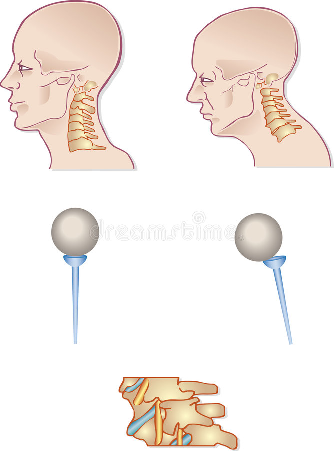 Spina dorsale del collo illustrazione vettoriale
