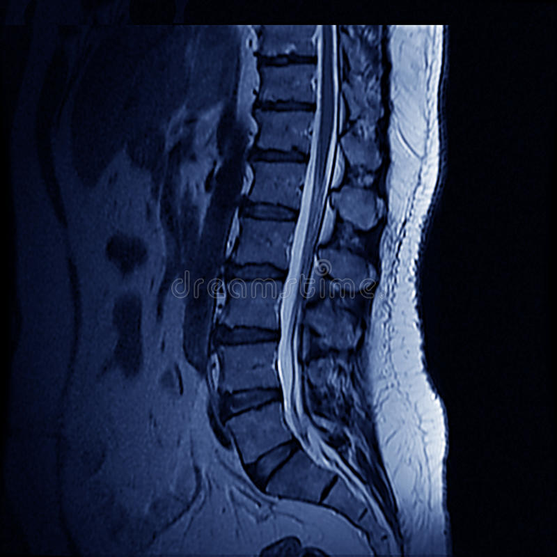 Spina dorsale di MRI fotografia stock libera da diritti