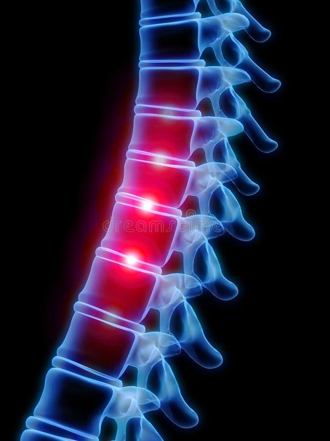Spina dorsale dolorosa illustrazione vettoriale