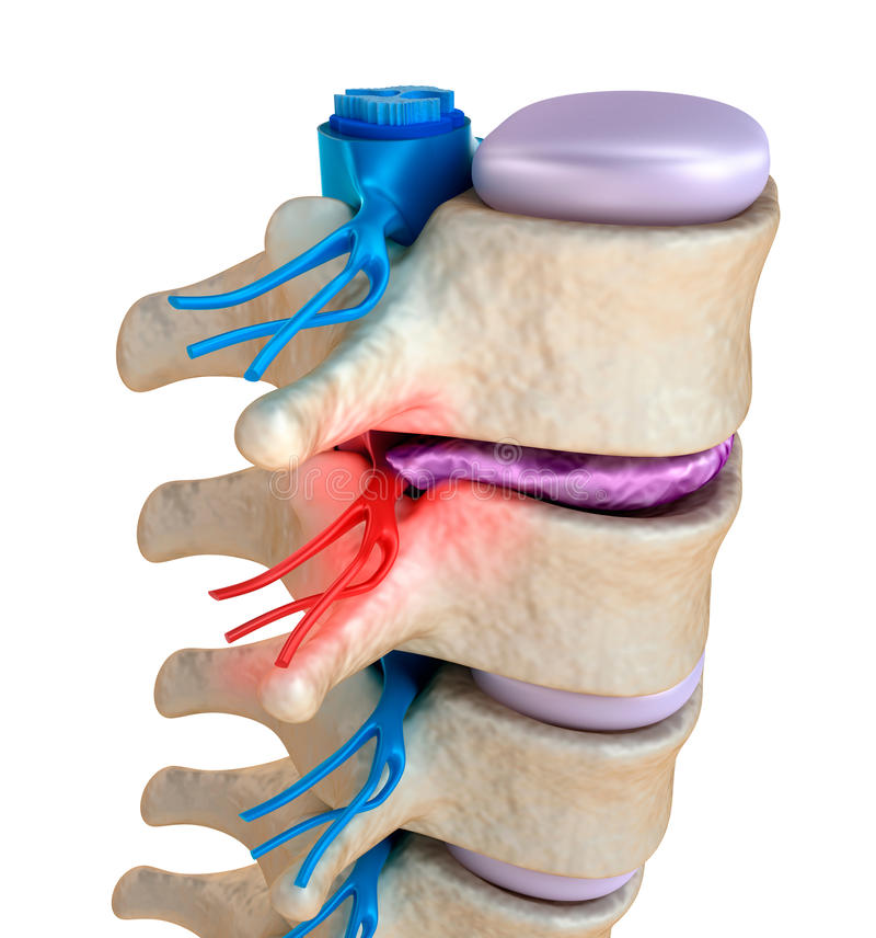 Spinal cord under pressure of bulging disc vector illustration