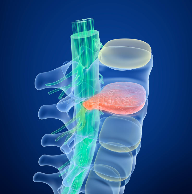 Spinal cord under pressure of bulging disc. Medically accurate 3D illustration. Spinal cord under pressure of bulging disc. Xray view. Medically accurate 3D vector illustration