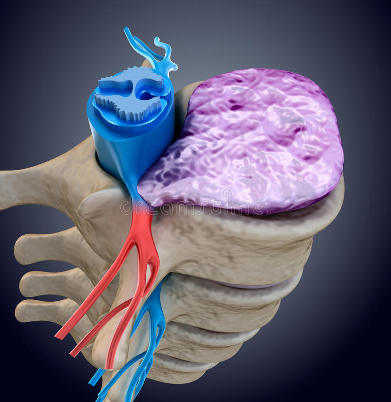 Spinal cord under pressure of bulging disc. Medically accurate illustration. Spinal cord under pressure of bulging disc. Medically accurate 3D illustration stock illustration