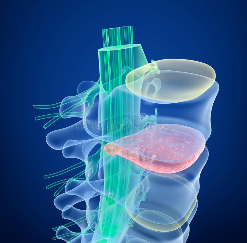 Spinal cord under pressure of bulging disc, X-Ray view. vector illustration