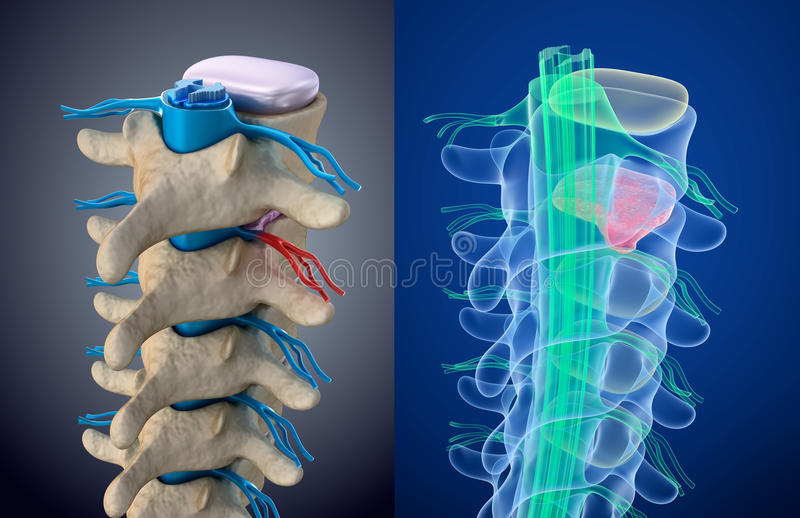 Spinal cord under pressure of bulging disc. Xray view. Medically accurate illustration. Spinal cord under pressure of bulging disc. Xray view. Medically accurate vector illustration