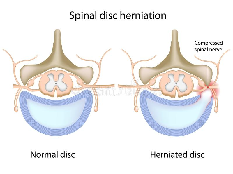 Spinal disc herniation royalty free illustration