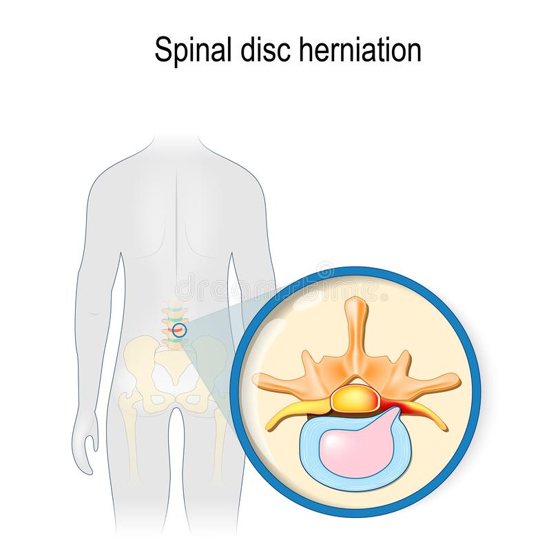 Spinal disc herniation. Back pain. Human silhouette with highlighted red color lumbar spine and Pelvis. Prolapse of intervertebral disc close-up. Vector stock illustration