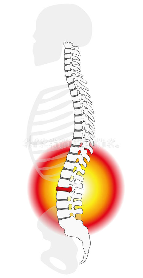 Spinal Disc Prolapse Herniation royalty free illustration