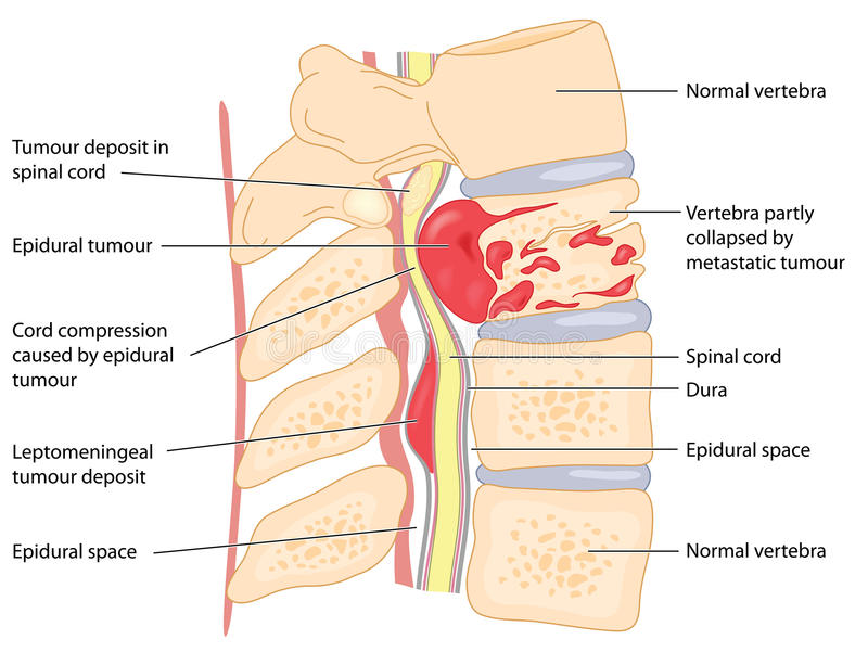 Spinal tumour. Primary and secondary tumours of the vertebrae and spinal cord, showing cord compression and collapsed vertebral body. Created in Adobe royalty free illustration