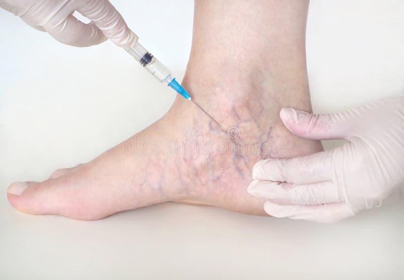 Spindel?der p? kvinnans ben, sclerotherapy behandling royaltyfri bild