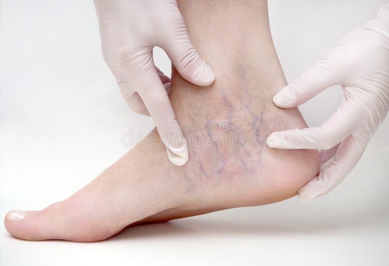 Spindel?der p? kvinnans ben, sclerotherapy behandling arkivbild