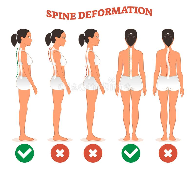 Spine deformation types and healthy spine comparison diagram poster. vector illustration
