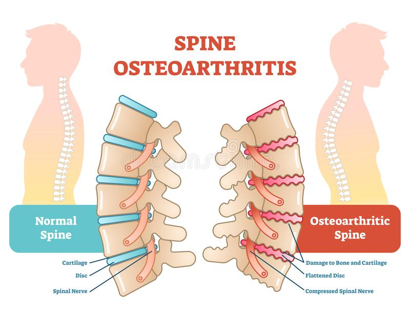Spine osteoarthritis anatomical vector illustration diagram. Educational medical scheme information royalty free illustration