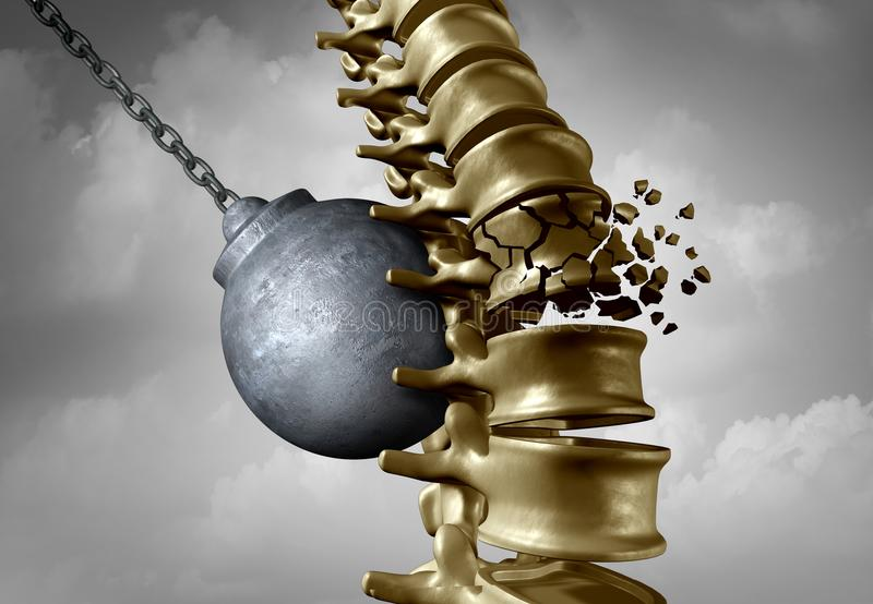 Spine Pain Suffering. Spine pain and spinal ache and bachache medical disease symbol as a wrecking ball hitting a human skeleton as a back medicine icon as a 3D stock illustration