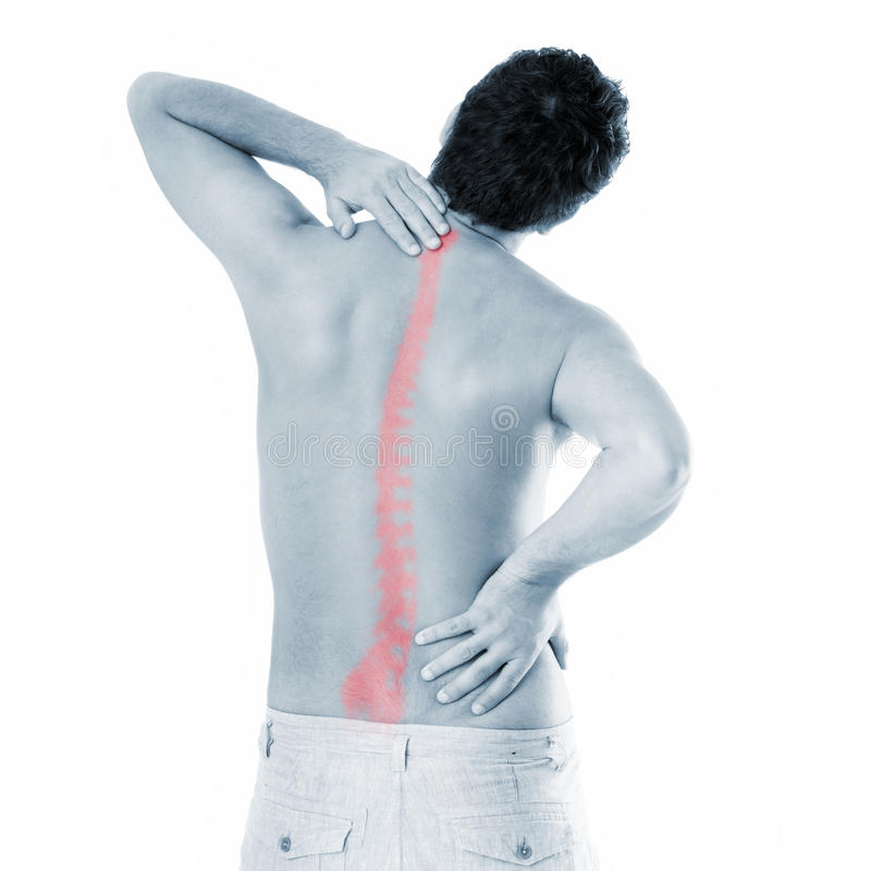 Spine problems stock image