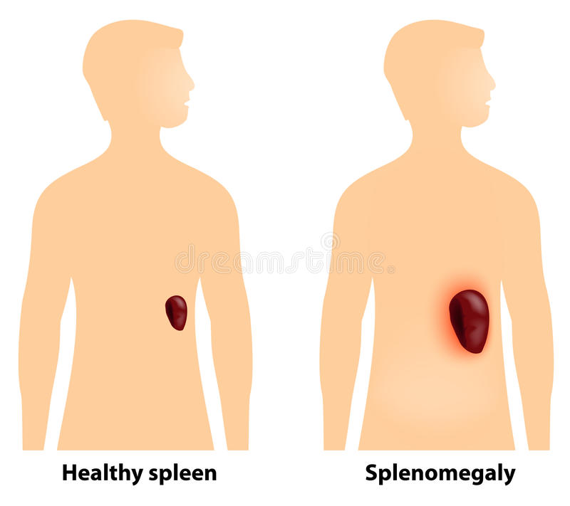 Splenomegaly or enlarged spleen vector illustration