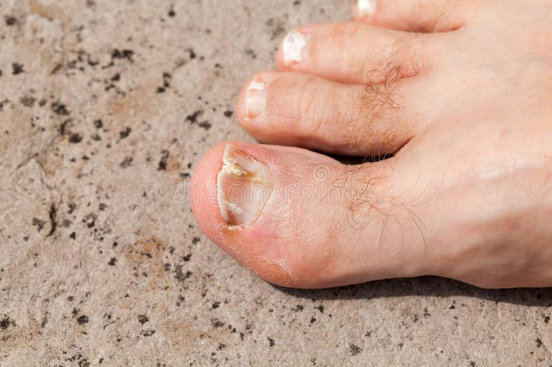 Split and broken toenail on the big toe. Adult male royalty free stock photography
