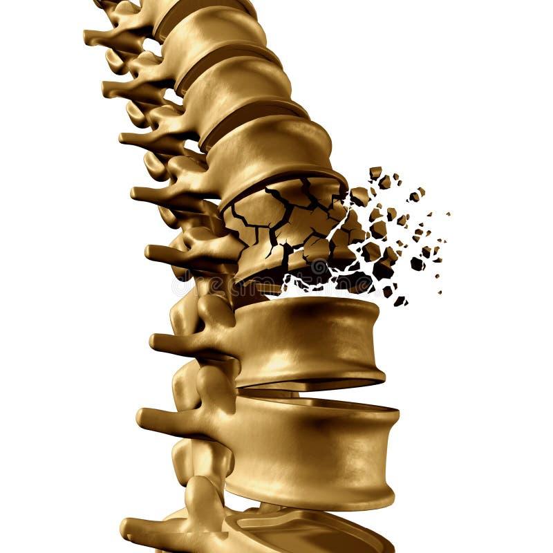 Spondylolysis (Spondylolisthesis) is een tekort in de knokige ring die uit de ruggegraat bestaan vector illustratie